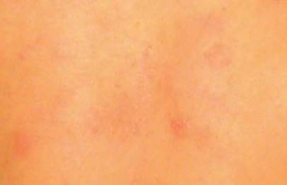 Growing Scrutiny for an Allergy Trigger Used in Personal ...