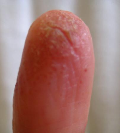 Finger Sept 09