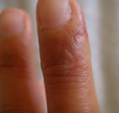Finger 2 Sept 09