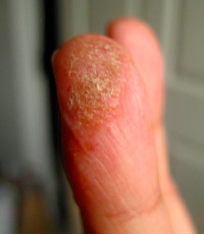 Finger 3 Sept 09