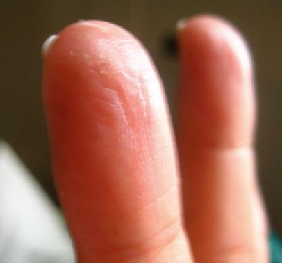 healing fingers