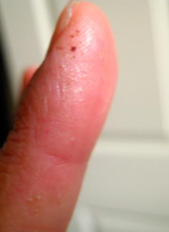 healing finger 2